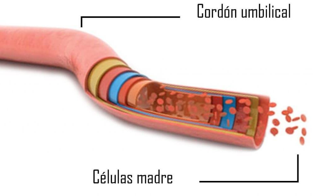 trasplante de células madre dentales