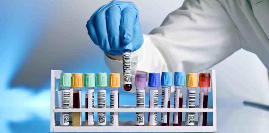 trasplante de celulas madre beneficios