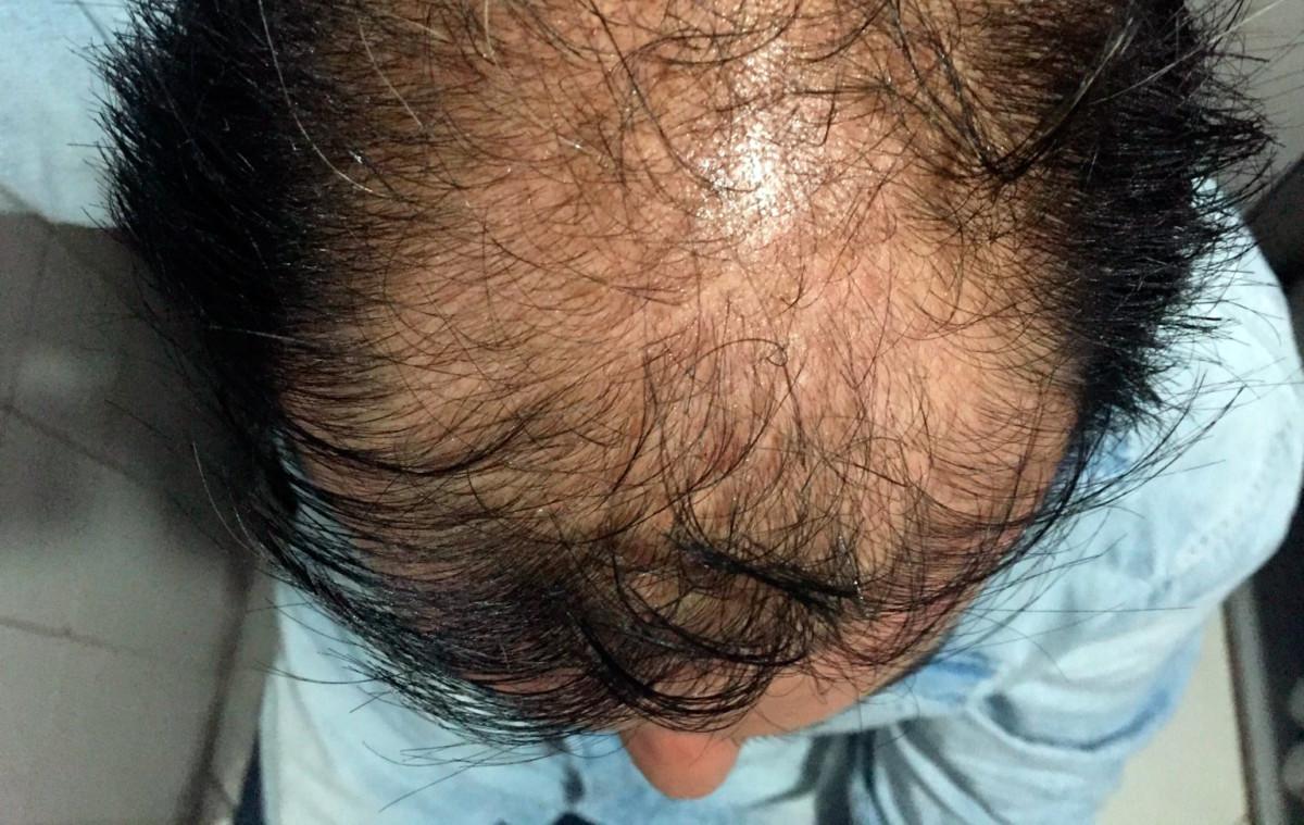 celulas madre contra alopecia