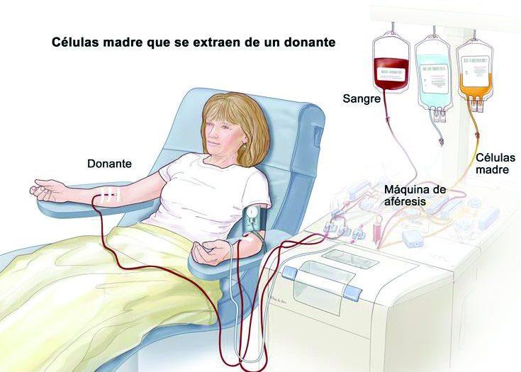 tratamiento con celulas madre artrosis